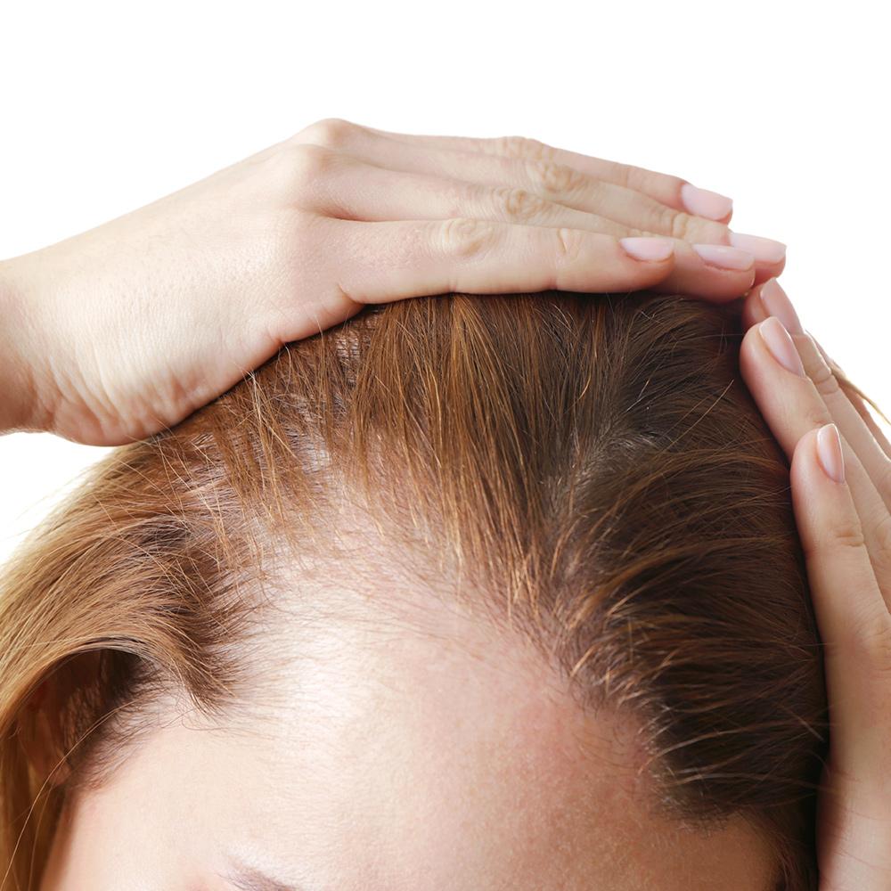 Can Kybella Cause Hair Loss?