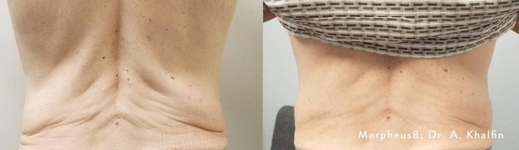 improve sagging skin on the love handles and back