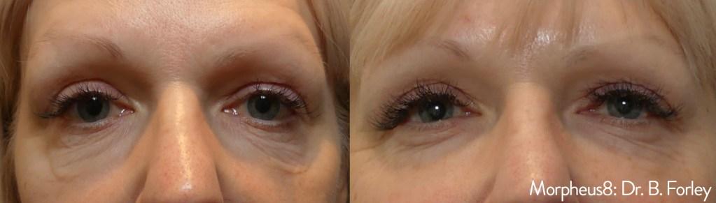 improve under eye bags