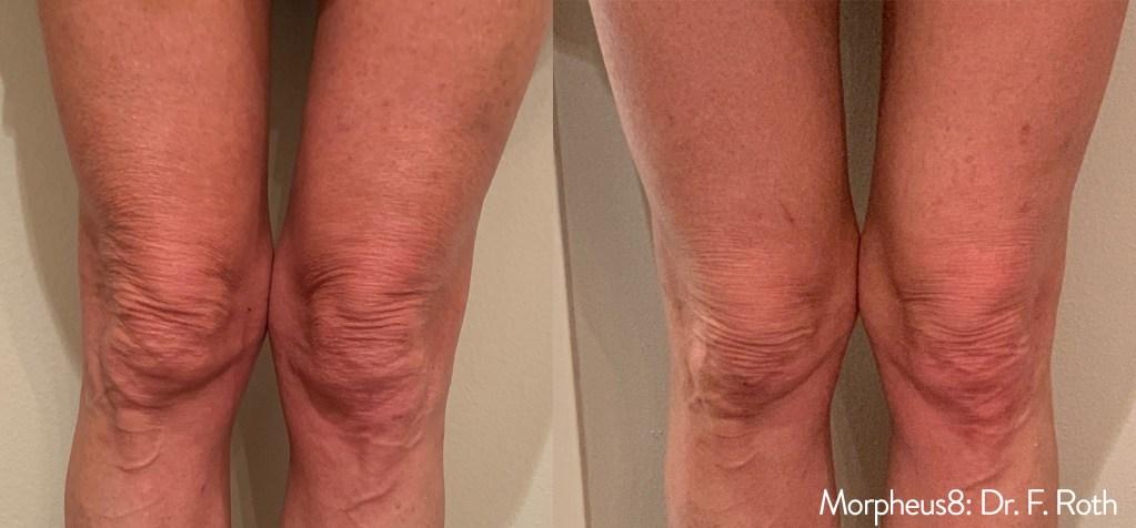 tighten sagging skin around the knees
