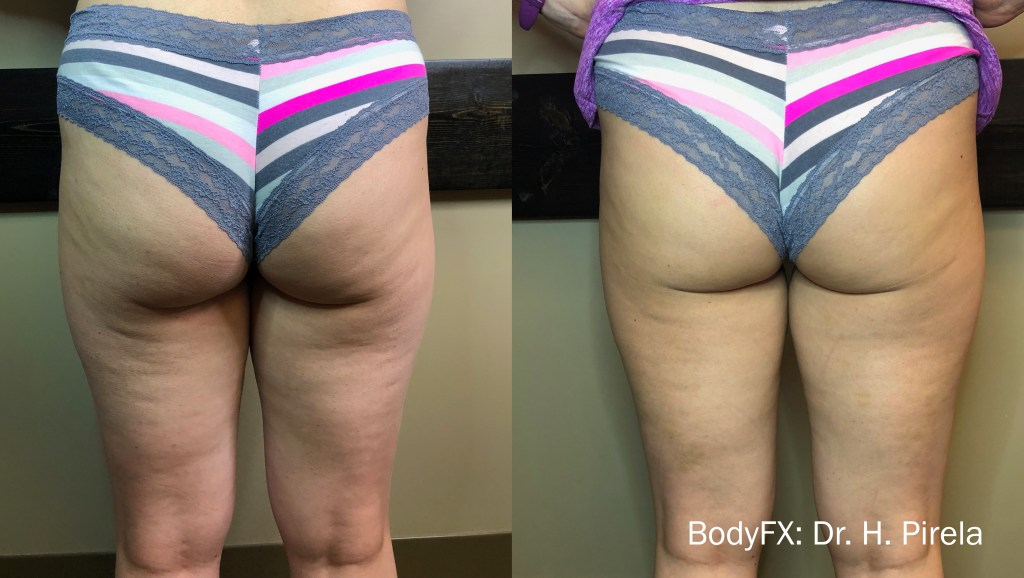 permanently destroy fat on your legs