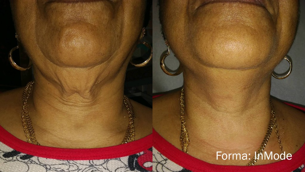 tightening loose skin in the neck