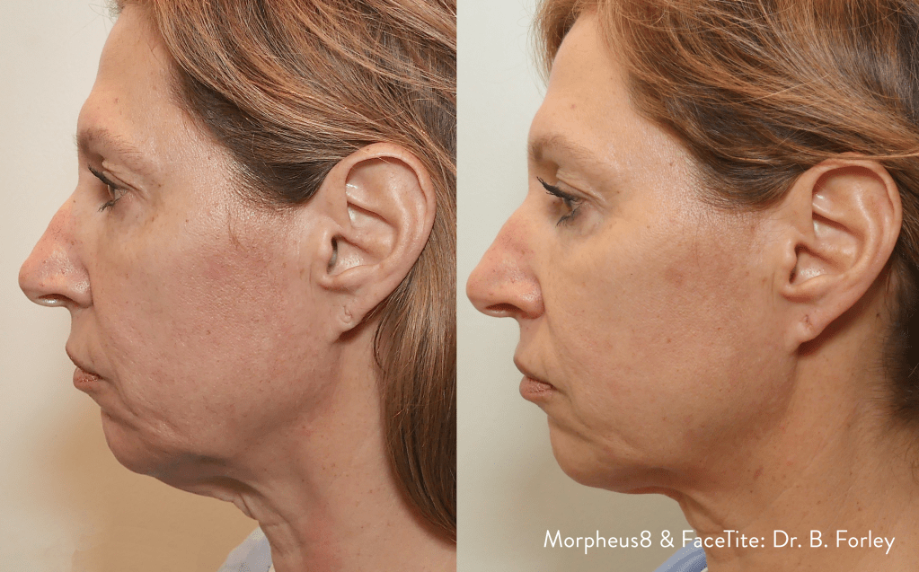 tighten and lift the jawline