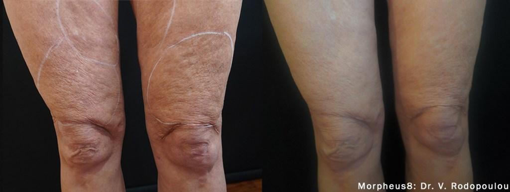 remove leg cellulite