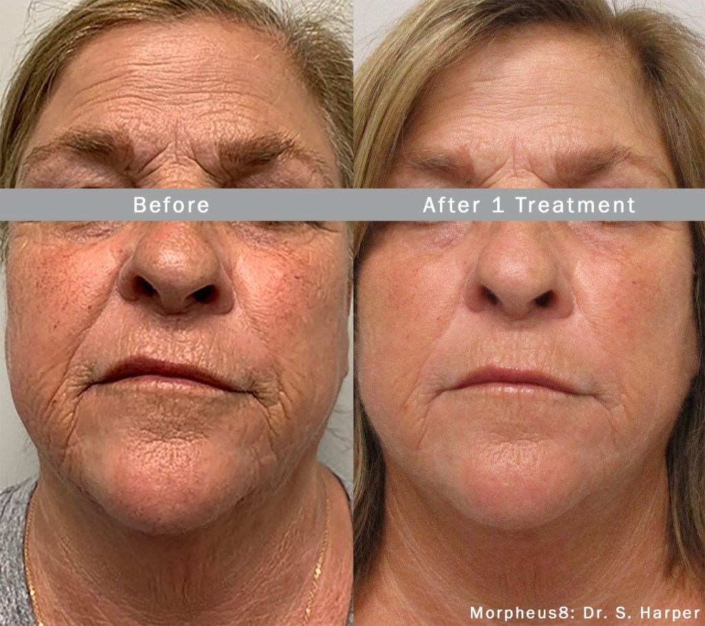 tighten the lower face and neck