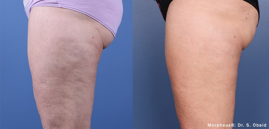 smooth out cellulite